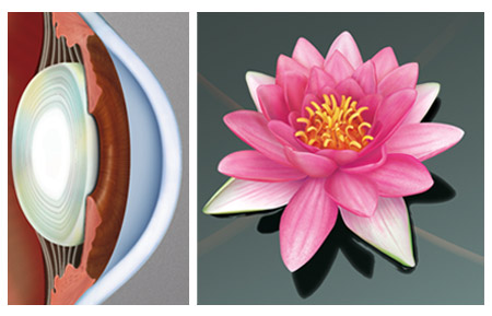 Eye Diagram and Waterlily